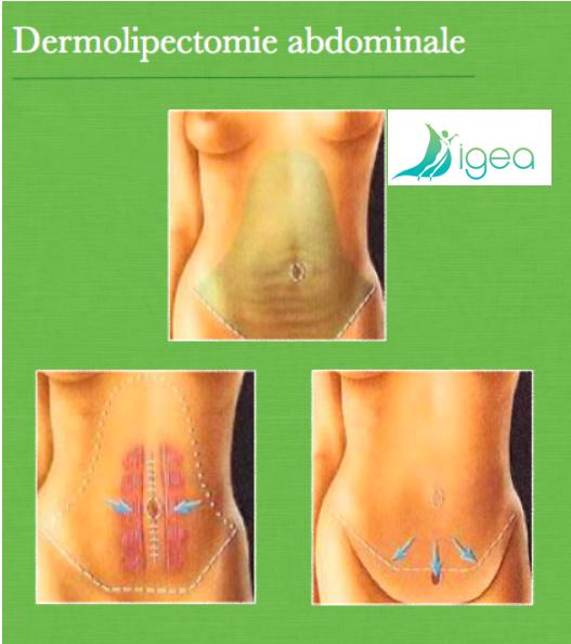 Dermolipectomie avec répositionnement de l'ombilic et fermeture diastasis dr SALSANO Montpellier Salerno