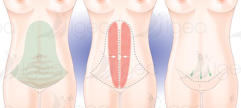 anneau gastrique gastric banding bendaggio gastrico